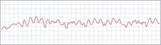 sudden-cardiac-arrest